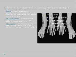Болезни нарушения обмена соединительной ткани синдром Марфана («паучьи пальц