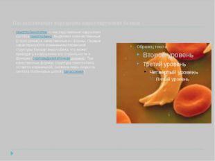 Наследственные нарушения циркулирующих белков гемоглобинопатии— наследствен