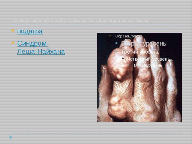 Наследственные болезни пуринового и пиримидинового обмена подагра Синдром Ле...