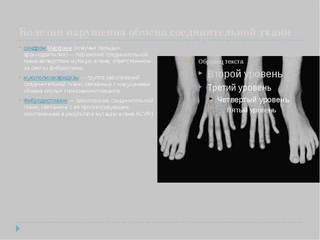 Болезни нарушения обмена соединительной ткани синдром Марфана («паучьи пальц...