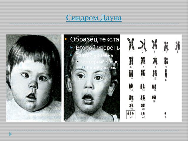 Синдром Дауна
