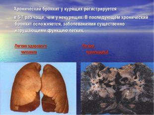 Хронический бронхит у курящих регистрируется в 5-7 раз чаще, чем у некурящих
