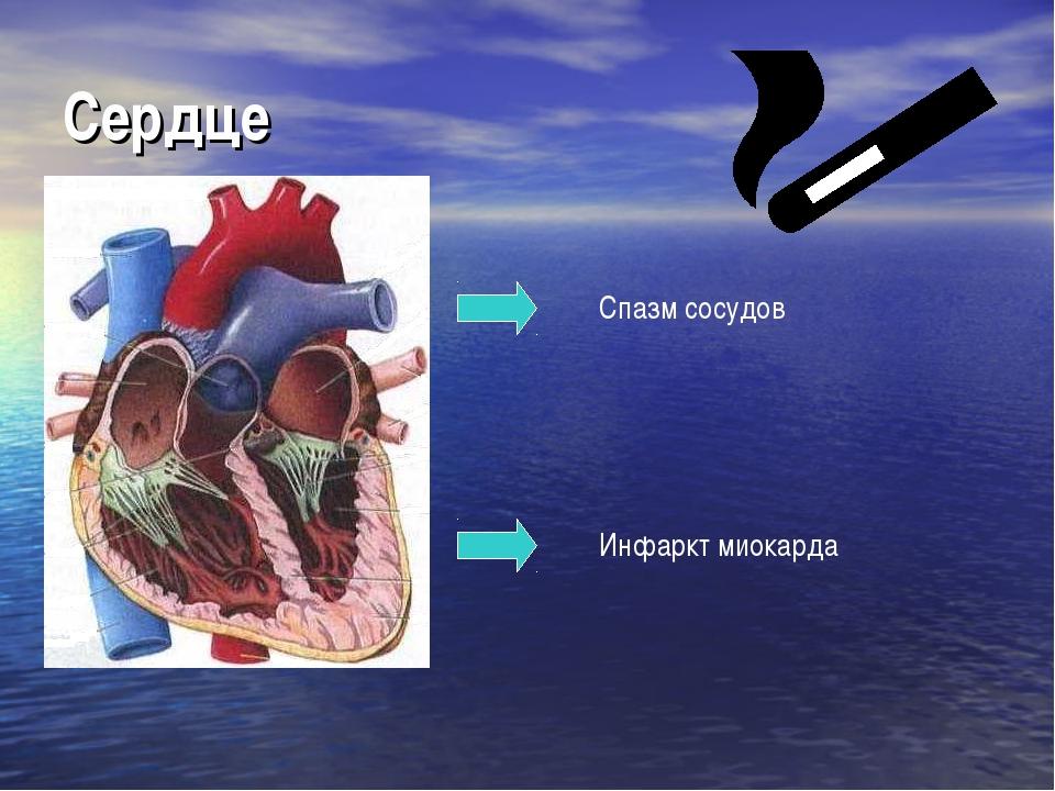 Сердце Спазм сосудов Инфаркт миокарда