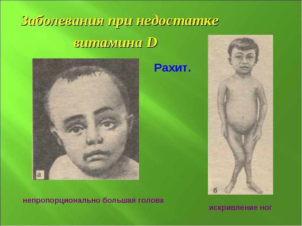 Заболевания при недостатке витамина D непропорционально большая голова Рахит....