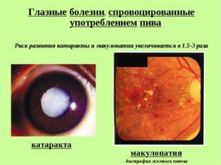 катаракта Глазные болезни, спровоцированные употреблением пива Риск развития