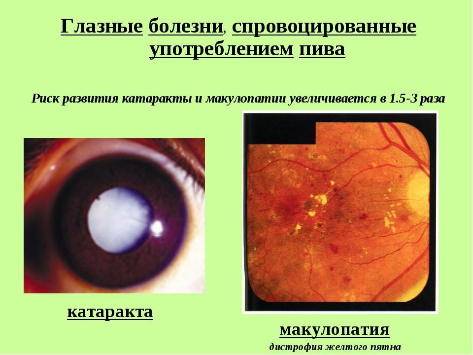 катаракта Глазные болезни, спровоцированные употреблением пива Риск развития...