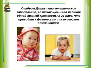Синдром Дауна - это генетическое заболевание, возникающее из-за наличия одной