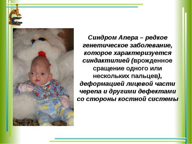 Синдром Апера – редкое генетическое заболевание, которое характеризуется синд...