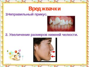 Вред жвачки 1Неправильный прикус. 2. Увеличение размеров нижней челюсти. * ht