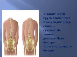 У таких детей грудь становится плоской,впалой,а спина –сутулой.Им тяжело дыш