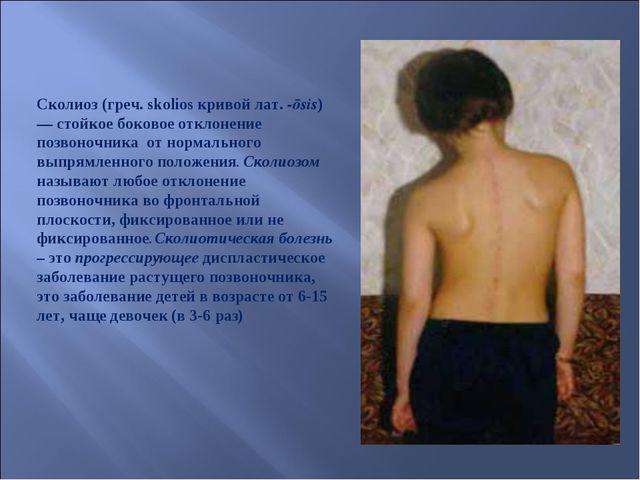 Сколиоз (греч. skolios кривой лат.-ōsis) — стойкое боковое отклонение позвон...