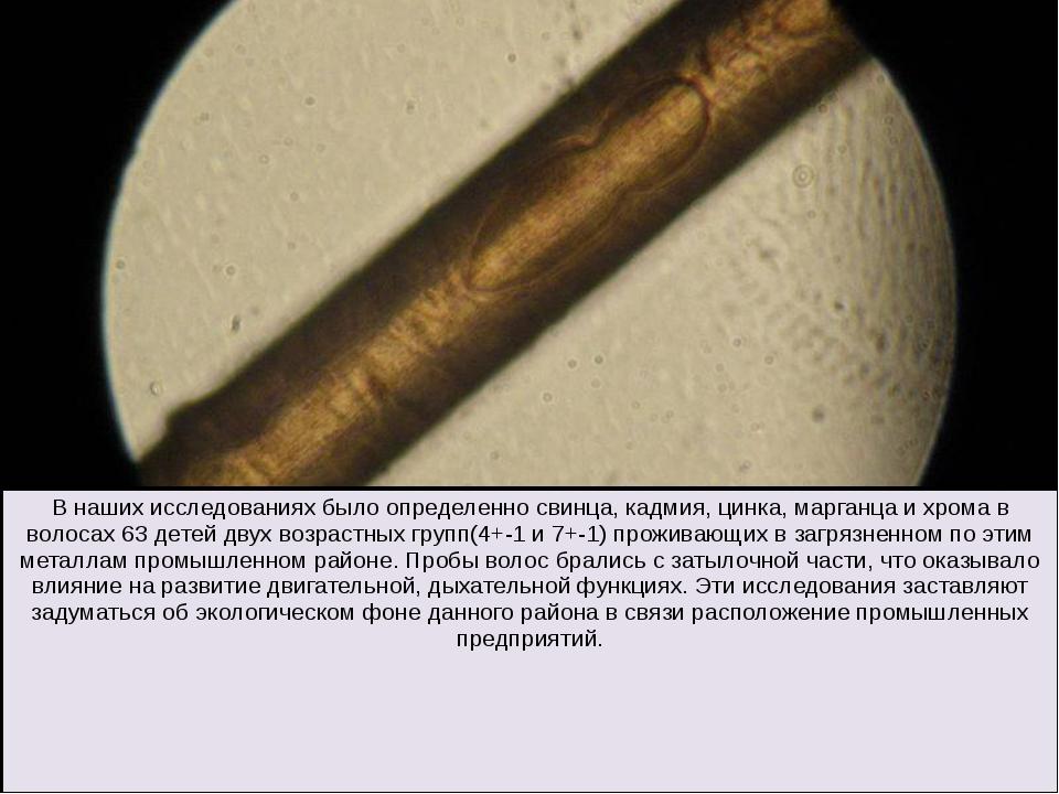 В наших исследованиях было определенно свинца, кадмия, цинка, марганца и хро...