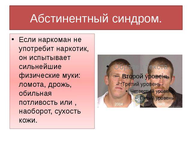 Абстинентный синдром. Если наркоман не употребит наркотик, он испытывает силь...
