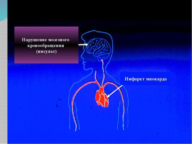 Нарушение мозгового кровообращения (инсульт) Инфаркт миокарда