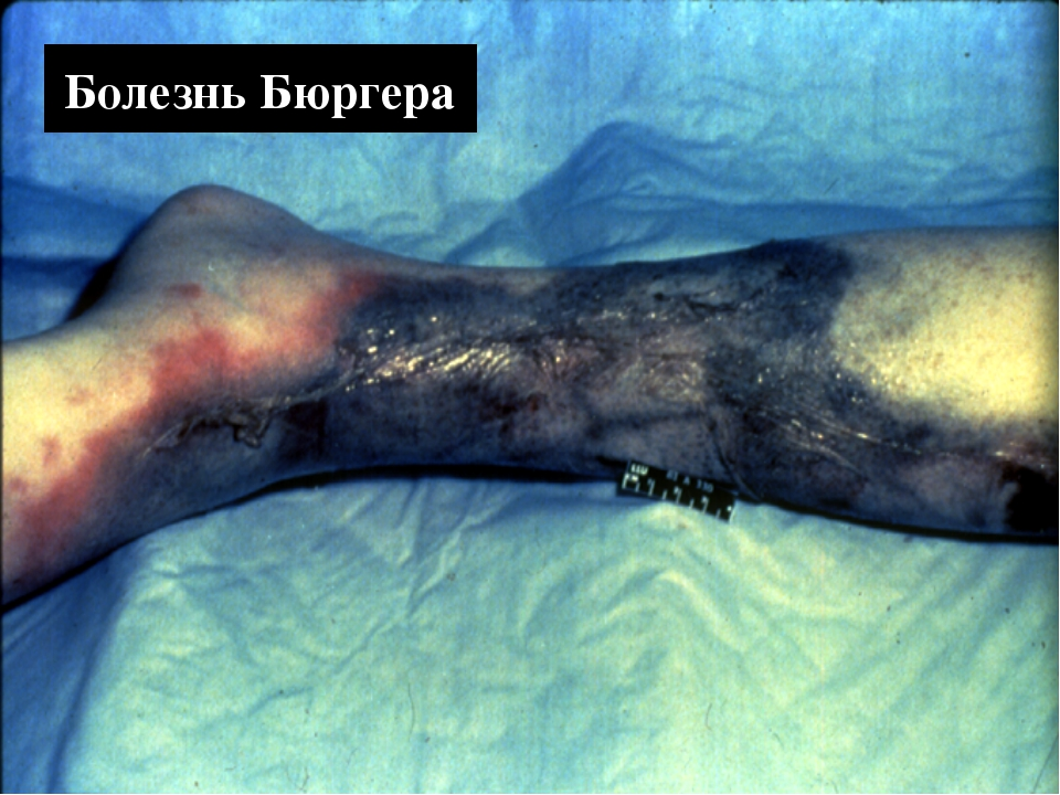 Buerger's Disease Болезнь Бюргера
