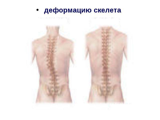 деформацию скелета
