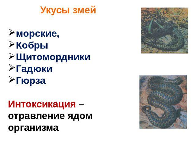 Укусы змей морские, Кобры Щитомордники Гадюки Гюрза Интоксикация – отравление...