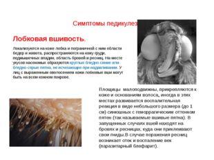 Симптомы педикулеза Лобковая вшивость. Локализуются на коже лобка и пограни