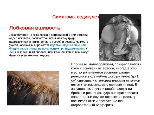 Симптомы педикулеза Лобковая вшивость. Локализуются на коже лобка и пограни...