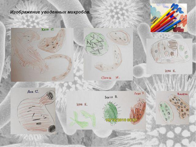 Изображение увиденных микробов. Изображение увиденных микробов.