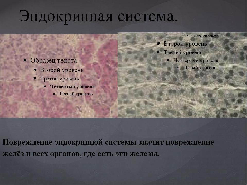 Эндокринная система. Повреждение эндокринной системы значит повреждение желёз...