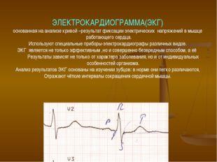 ЭЛЕКТРОКАРДИОГРАММА(ЭКГ) основанная на анализе кривой –результат фиксации эле