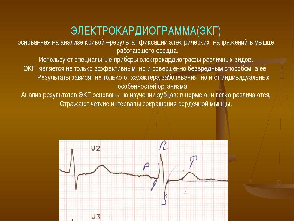 ЭЛЕКТРОКАРДИОГРАММА(ЭКГ) основанная на анализе кривой –результат фиксации эле...