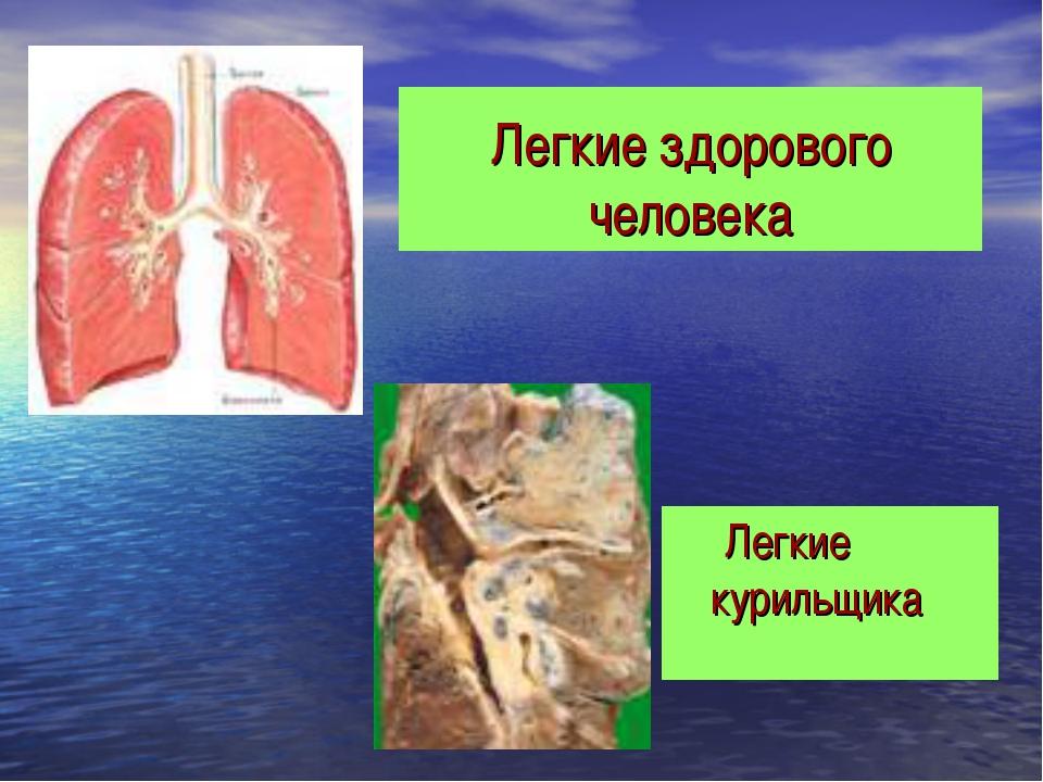 Легкие курильщика Легкие здорового человека