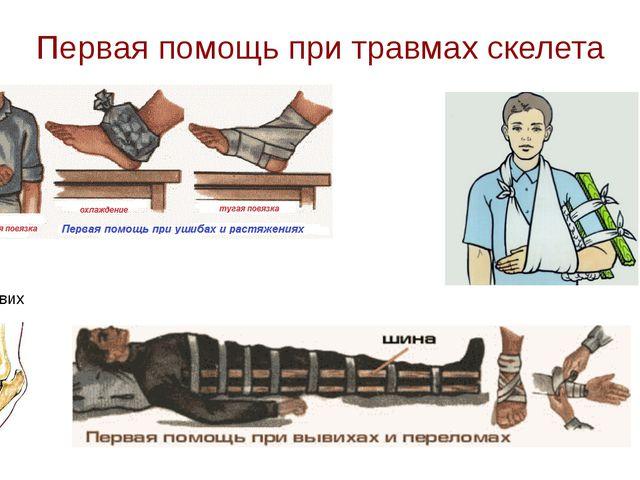 Первая помощь при травмах скелета Вывих