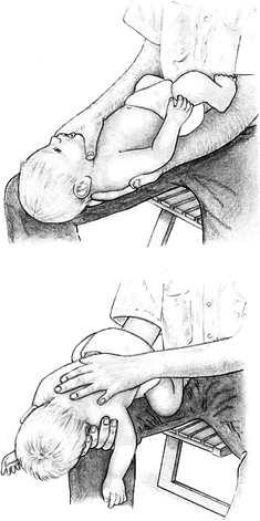 Что делать при асфиксии у ребенка
