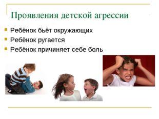 Проявления детской агрессии Ребёнок бьёт окружающих Ребёнок ругается Ребёнок