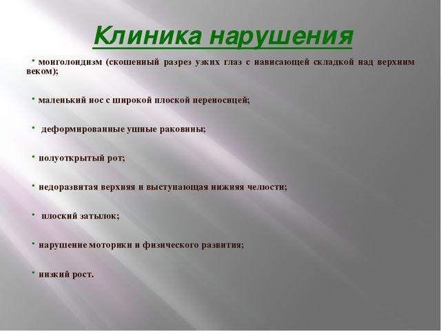 Клиника нарушения монголоидизм (скошенный разрез узких глаз с нависающей скл...