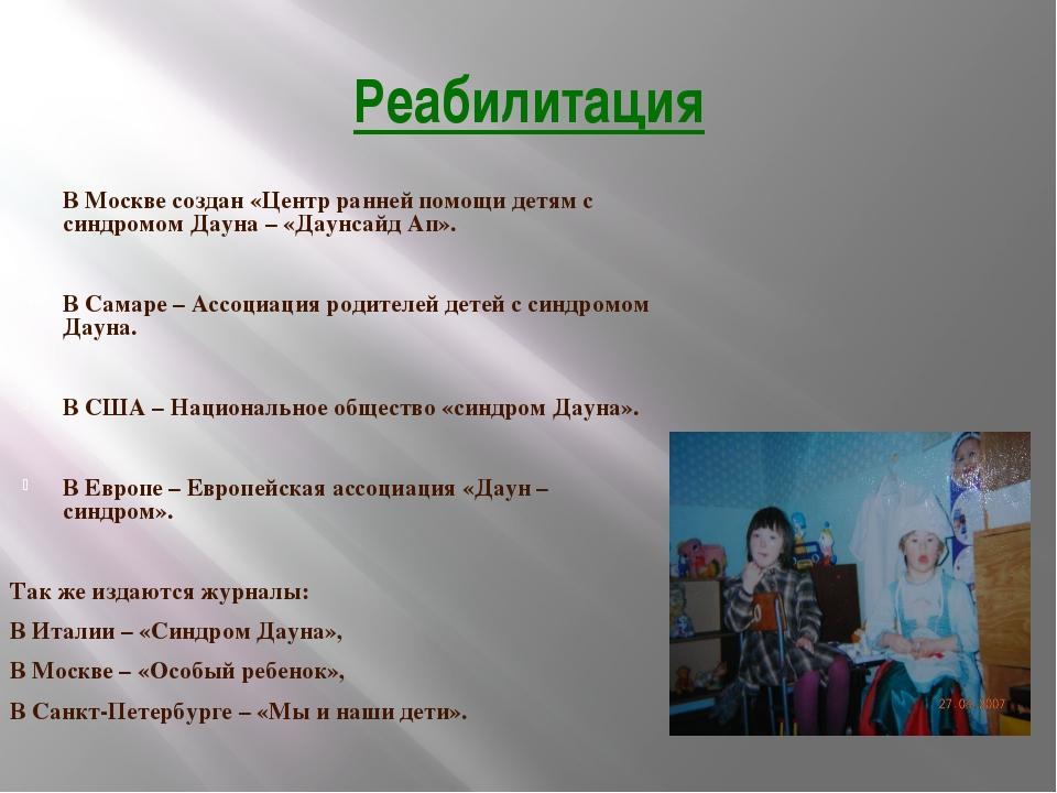 Реабилитация В Москве создан «Центр ранней помощи детям с синдромом Дауна – «...