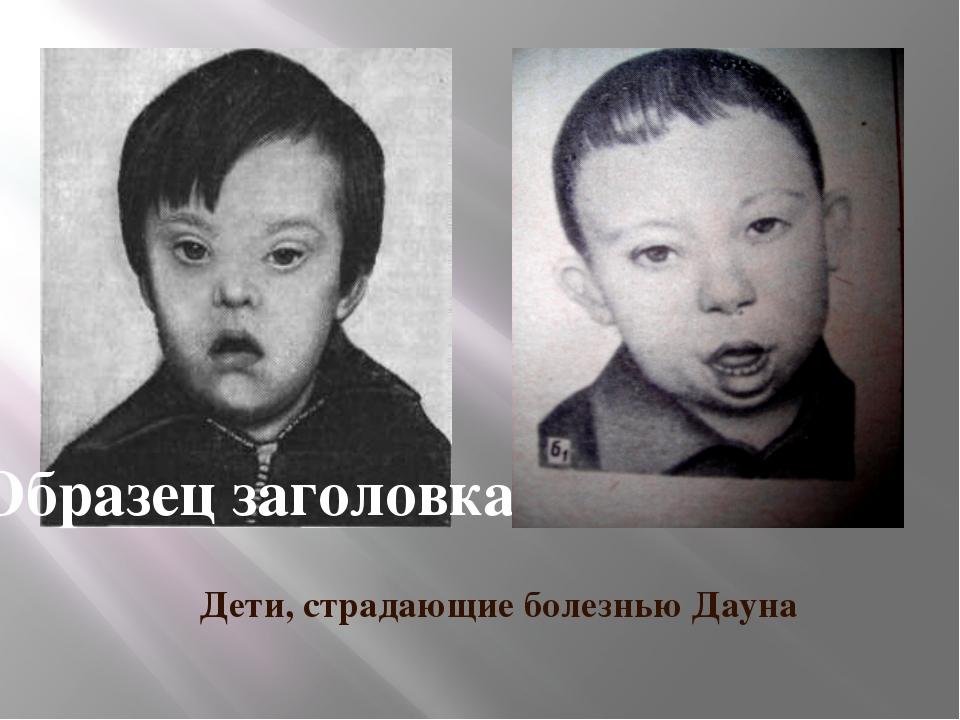 Дети, страдающие болезнью Дауна