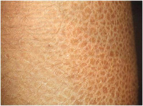 Ихтиоз обыкновенный (вульгарный, простой) : Ихтиоз - описание, виды, характерные признаки, течение заболевания