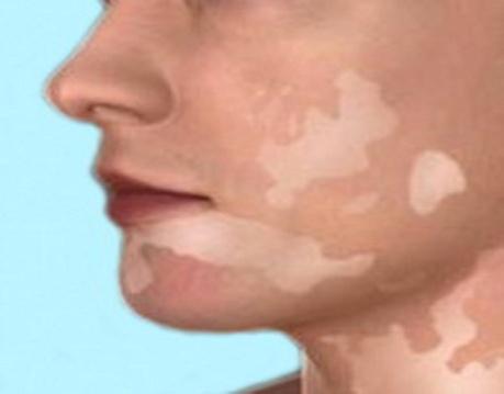 Гипопигментации кожи