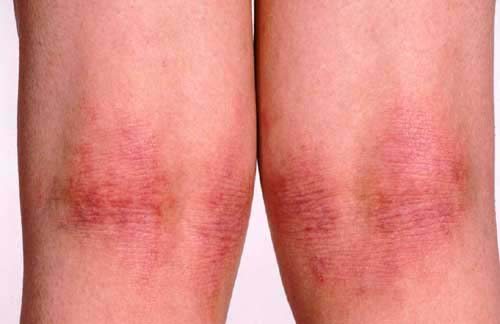 Eczema Lichenification