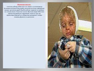 Физическое насилие - нанесение ребенку родителями или лицами, их заменяющими,