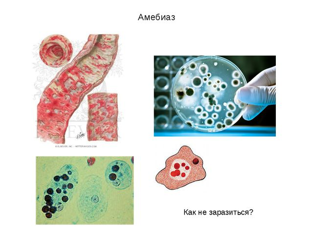 Амебиаз Как не заразиться? Как не заразиться?