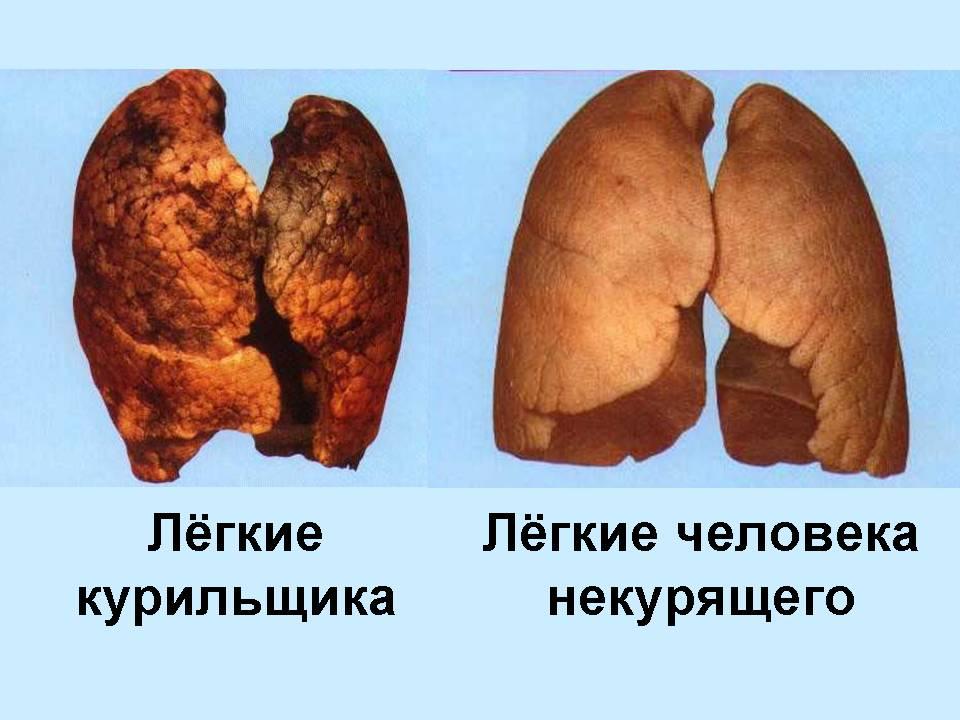 Как выглядят легкие курильщика? Интересный сайт. Фото, инфа и видео!