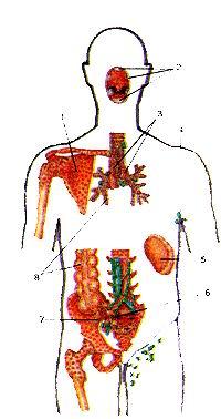 Рис. 239. Расположение центральных и периферических органов иммунной системы в теле человека. Схема. Вид спереди. 1-костный мозг; 2-минда-лины лимфоидного глоточного кольца; 3-тимус; 4-лимфатические узлы (подмышечные); 5-селе-зенка; 6-лимфоидная (пей-ерова) бляшка; 7-аппен-дикс; 8-лимфоидные узелки. Fig. 239. Расположение центральных и периферических органов иммунной системы в теле человека. Схема. Вид спереди. 1-medulla ossium; 2-tonsill (anular lymphoideus pharyn-gis); 3-thymus; 4-nodi lym-phatici (axillares); 5-lien (spleen) nodulus lymphaticus aggregati; 7-appendix vermi-formis; 8-noduli (folliculi) lymphatic! solitarii. Fig.239. Position of central and peripheral organs of immune system in human body. Sketch. Anterior aspect. I -bone marrow; 2-tonsils of pharyngeal lymphoid ring; 3-thymus; 4-axillary lymph nodes; 5-spleen; 6-aggregated lymphoid nodule; 7-ver-miform appendix; 8-solitary lymphoid nodules.