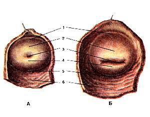 Рис. 232. Влагалищная часть шейки матки (portio vaginalis cervicis uteri). А—нерожавшей женщины; Б-рожавшей женщины. Вид снизу. Влагалище отрезано и удалено. 1-передний свод влагалища; 2-передняя губа (отверстия матки); 3-отверстие матки; 4-задняя губа (отверстия матки); 5-задний свод влагалища; 6-задняя стенка влагалища. Fig. 232. Влагалищная часть шейки матки. А— нерожавшей женщины; Б—рожавшей женщины. Вид снизу. Влагалище отрезано и удалено, l-fornix vaginae anterior; 2-labium anterius; 3-ostium uteri; 4-labium posterius; 5-fornix vaginae posterior; 6-paries posterior vaginae. Fig. 232. kginal part of neck of uterus. A—millipara woman. B—parous woman. View from below. Vagina was cut off and removed. 1-anterior part of vaginal fornix; 2-lip of ostium of uterus; 3-ostium of uterus (external os of cervix of uterus); 4-posterior part of vaginal fornix; 5-posterior wall of vagina.