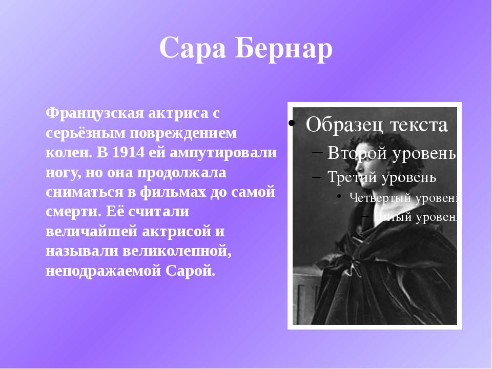 Сара Бернар Французская актриса с серьёзным повреждением колен. В 1914 ей амп...