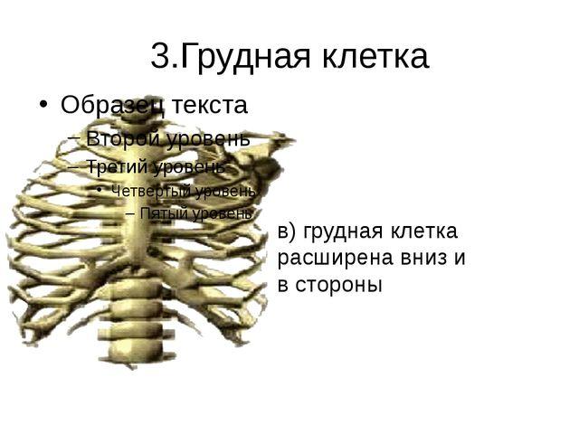 3.Грудная клетка в) грудная клетка расширена вниз и в стороны