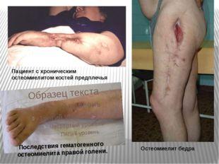 Последствия гематогенного остеомиелита правой голени. Пациент с хроническим