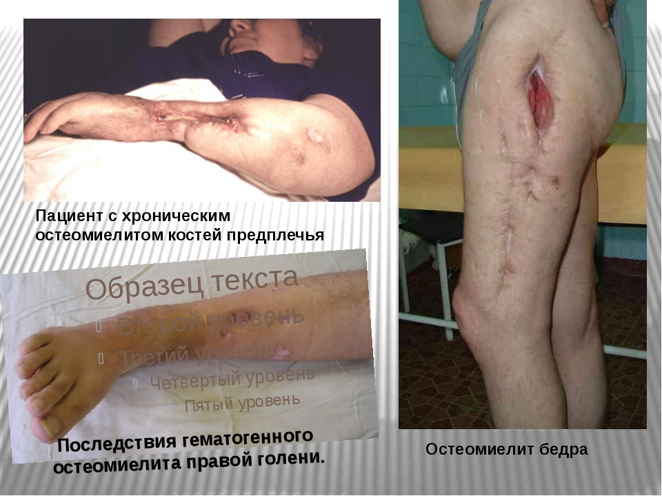 Последствия гематогенного остеомиелита правой голени. Пациент с хроническим...