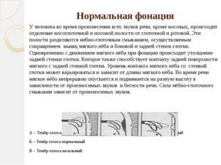 Нормальная фонация У человека во время произнесения всех звуков речи, кроме н