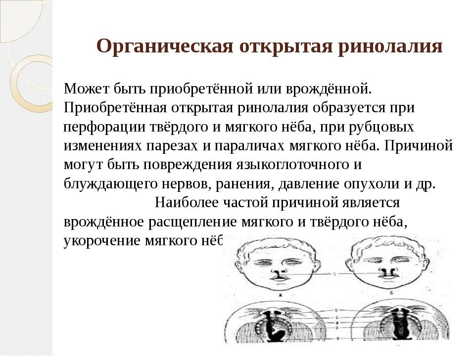 Органическая открытая ринолалия Может быть приобретённой или врождённой. Прио...