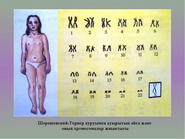 Шерешевский-Тернер ауруымен ауырытын әйел және оның хромосомалар жиынтығы