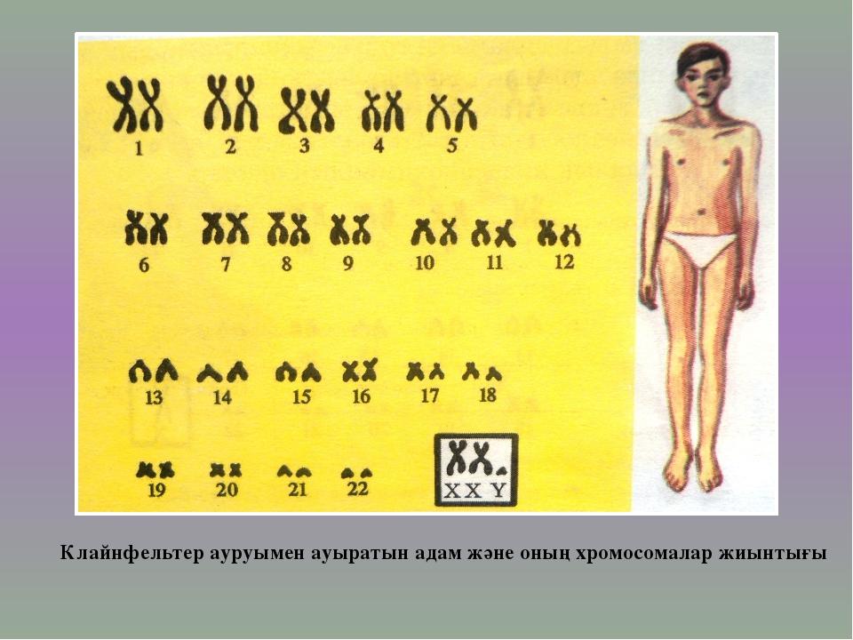 Клайнфельтер ауруымен ауыратын адам және оның хромосомалар жиынтығы